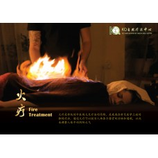 火疗 Fire Treatment (90min)